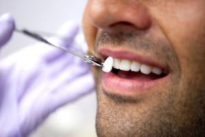 faccette dentali varese