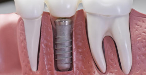impianti dentali prezzi