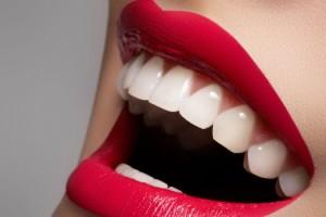 impianti dentali prezzi Varese