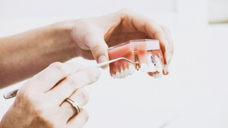 implantologia varese